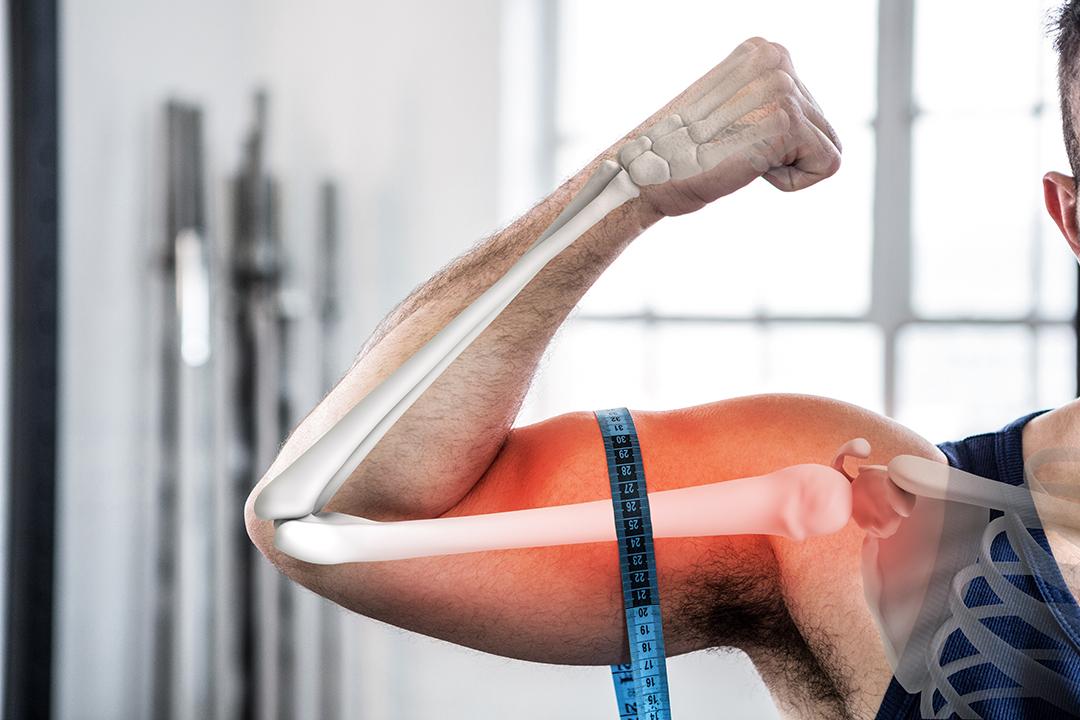 Lo sport favorisce il benessere delle ossa